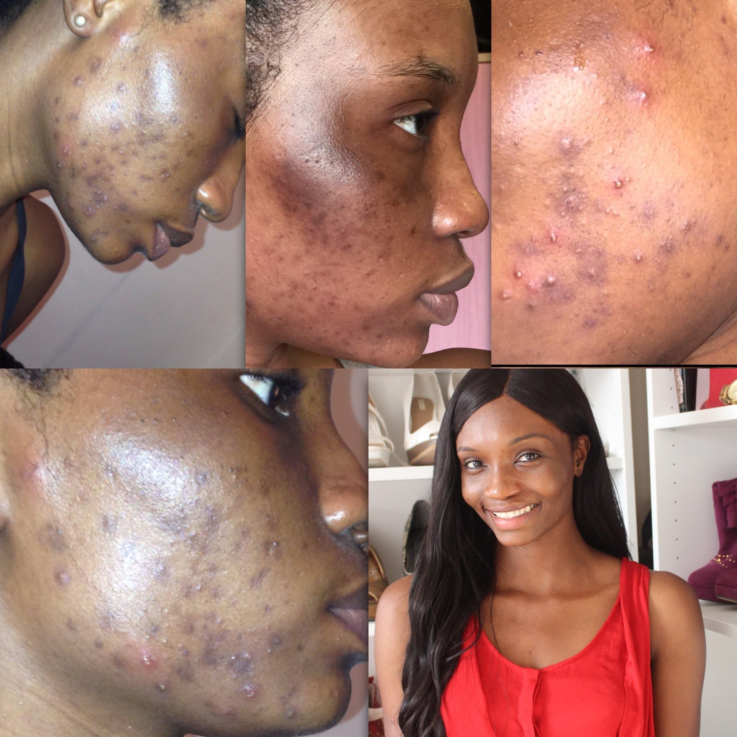 Calendário 2019 Com Feriados Bh Recientes Vanishing Cream for Acne Scars Of Calendário 2019 Com Feriados Bh Más Recientes Calendário 2019