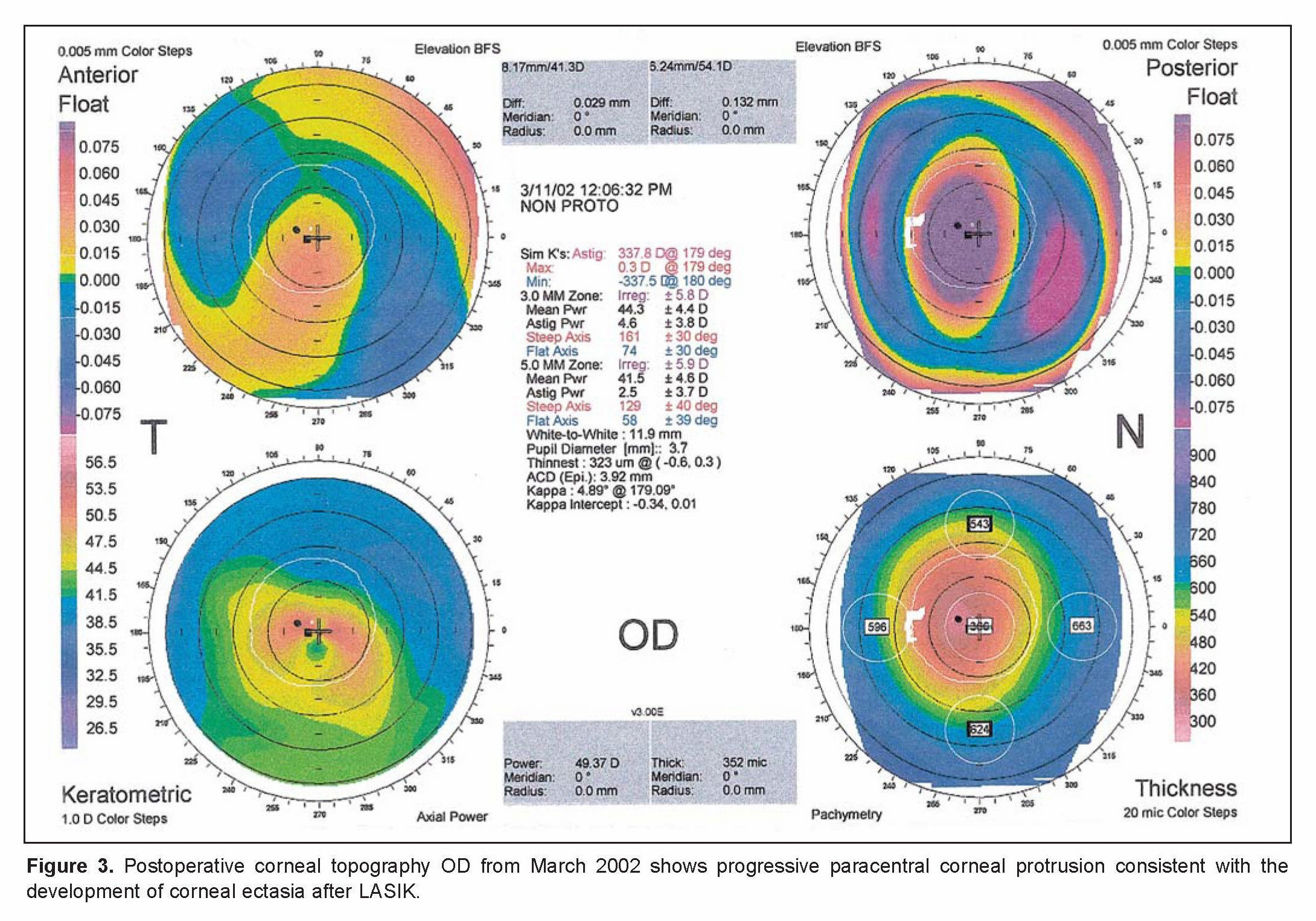 March Reading Month Calendar Activities Actual Wavefront Aberrations From Corneal Ectasia after Laser In Situ Of March Reading Month Calendar Activities Más Caliente Calendar Of events